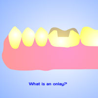 restorative dentist stamford