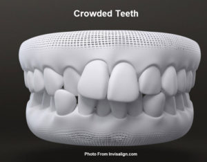 Invisalign braces for crowded teeth