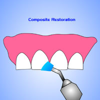 composite fillings Stamford